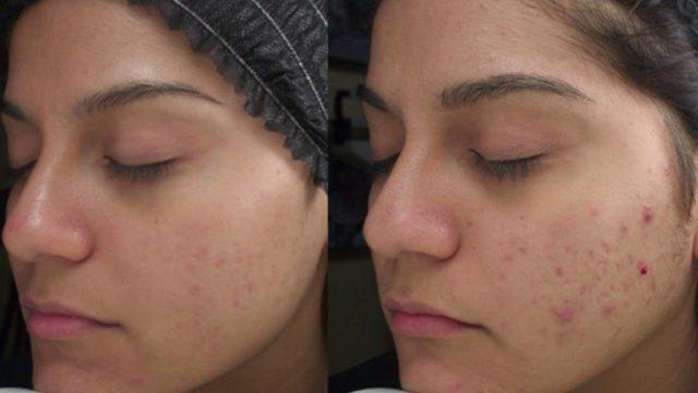Уход за лицом при проблемной и чувствительной коже
