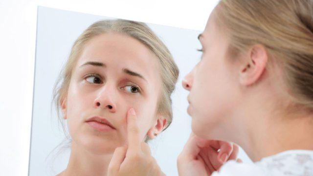Как ухаживать за кожей лица подросткам