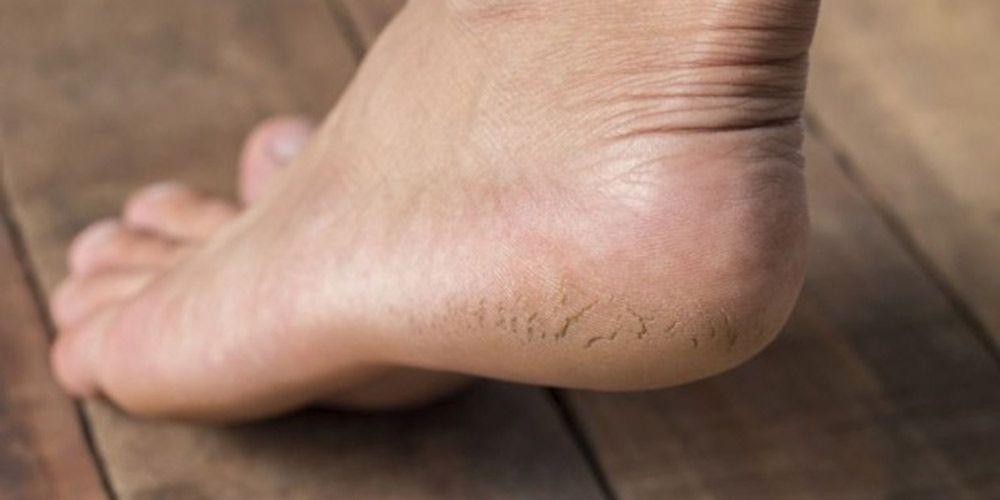 Как лечить трещины пяток в домашних условиях 725