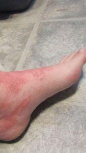 Почему чешутся ступни ног