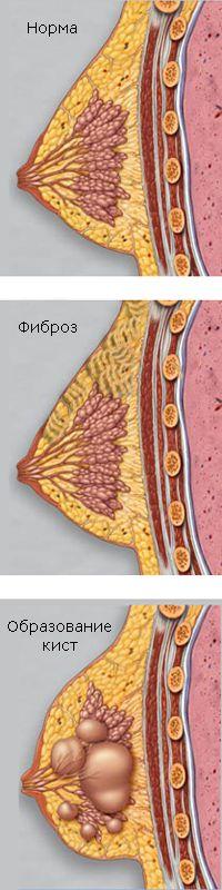 Почему и как возникает мастопатия?
